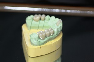 Sculpture CAD/CAM Full-Contour Zirconia